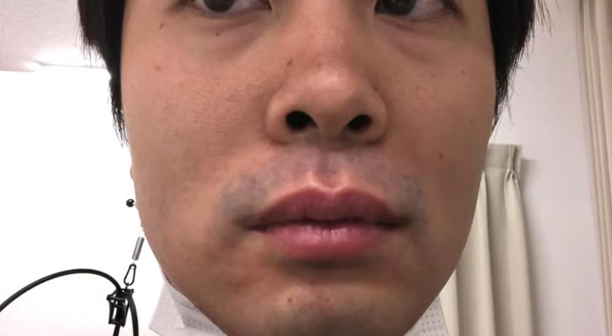 施術後の顔